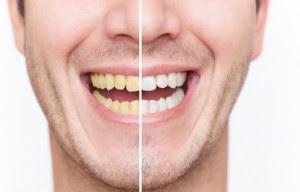Tips Memutihkan Gigi Kuning Khusus Perokok Aniklestari28